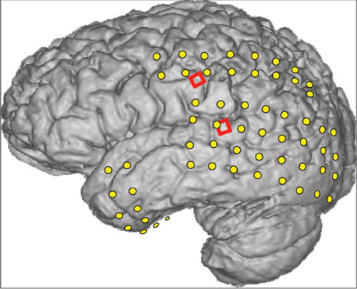 This magnetic resonance image of an epileptic patient's brain is superimposed with the locations of two kinds of electrodes: conventional ECoG electrodes (yellow) to help locate the source of his seizures so surgeons could operate to prevent them, and two grids (red) of 16 experimental microECoG electrodes used to read speech signals from the brain. University of Utah scientists used the microelectrodes to translate brain signals into words -- a step toward devices that would let severely paralyzed people speak.Photo Credit: Kai Miller, University of Washington
