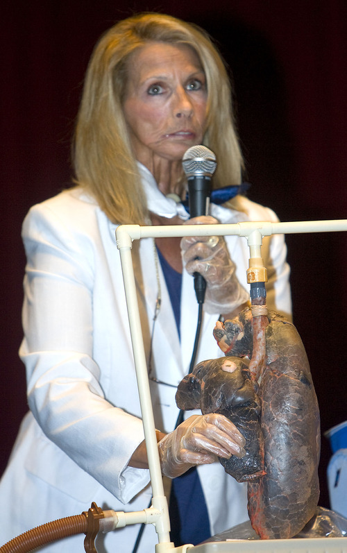 Al Hartmann   |  The Salt Lake Tribune  Cancer survivor Terrie Hall inflates a  blackened, diseased pig lung, (much like a human  lung damaged by cigarette use) as she talks to students at Taylorsville High School Tuesday April 12 for the Utah Department of Health (UDOH) TRUTH Campaign She can't swim, blow her nose or speak – and she never will. Hall lost her voice box, breathes through a hole in her chest, and suffered through radiation and surgeries thanks to tobacco addiction.