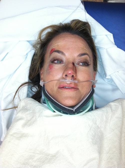 Photo courtesy Kerri Cronk  Fox 13 anchor Kerri Cronk wears a neck brace and tubes shortly after her Aug. 5, 2011, bicycle crash in Salt Lake City. The crash kept Cronk off the air for about eight weeks.