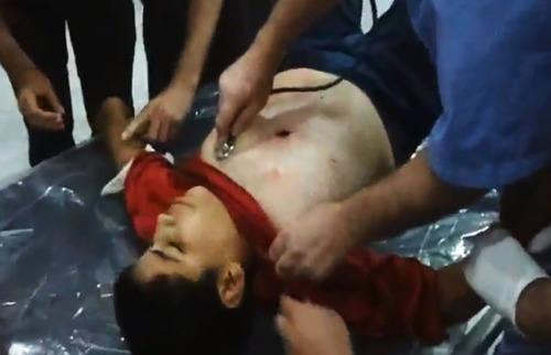 In this image made from amateur video released by the Shaam News Network and accessed Tuesday, July 24, 2012, Syrian medics treat a wounded boy in Aleppo, Syria. (AP Photo/Shaam News Network via AP video) TV OUT, THE ASSOCIATED PRESS CANNOT INDEPENDENTLY VERIFY THE CONTENT, DATE, LOCATION OR AUTHENTICITY OF THIS MATERIAL
