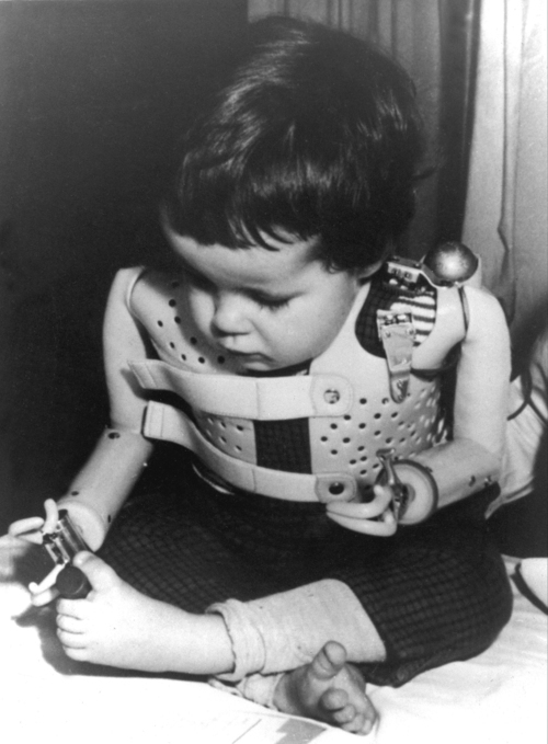FILE - In a 1965 file photo provided by the U.S. Department of Health, a three-year-old girl, born without arms to a German mother who took the drug thalidomide, uses power-driven artificial arms fitted to her by Dr. Ernst Marquardt of the University of Heidelberg in Germany. Pharmaceutical company Gruenenthal, German manufacturer of anti-morning sickness drug thalidomide, has for the first time apologized to people who were born with congenital birth defects as a result of its use. Chief executive Harald Stock said Friday, Aug. 31, 2012 that the company had failed to reach out