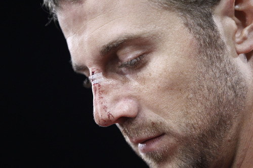 San Francisco 49ers quarterback Alex Smith has a cut on his nose at the end of an NFL football game against the Detroit Lions in San Francisco, Sunday, Sept. 16, 2012. San Francisco won 27-19.  (AP Photo/Tony Avelar)