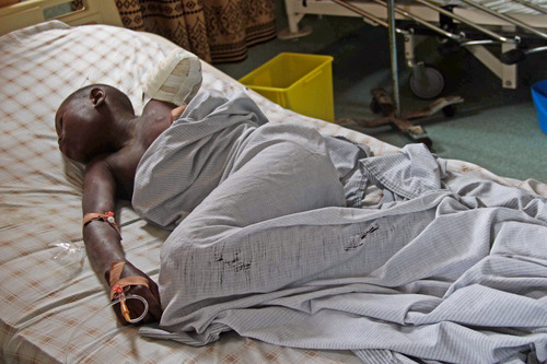 A 12-year-old boy lies in a bed at the Heal Africa hospital, after his arm was amputated following a shrapnel wound during heavy fighting between the Congolese army and M23 rebels in Goma, Goma, Congo, Tuesday, Nov. 20, 2012. A rebel group created just seven months ago seized the strategic provincial capital of Goma, home to more than 1 million people in eastern Congo, and its international airport on Tuesday, officials and witnesses said, raising the specter of a regional war. (AP Photo/Melanie Gouby)