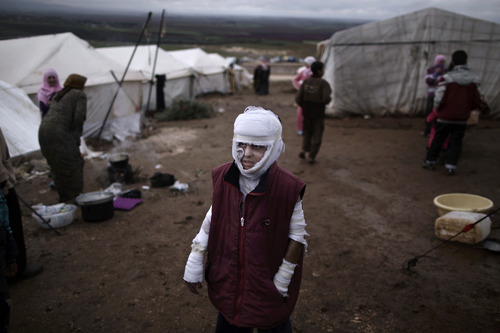 In this Tuesday, Dec. 11, 2012 photo, Abdullah Ahmed, 10, who suffered burns in a Syrian government airstrike and fled his home with his family, stands outside their tent at a camp for displaced Syrians in the village of Atmeh, Syria.  (AP Photo/Muhammed Muheisen)