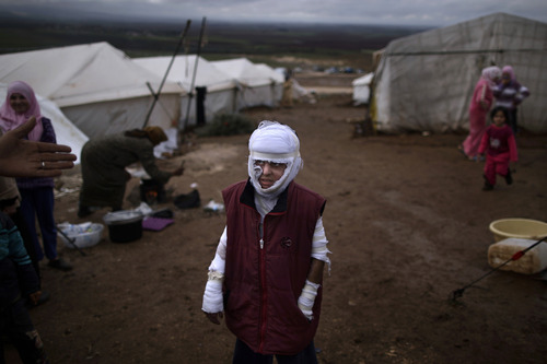 FILE - Abdullah Ahmed, 10, who suffered burns in a Syrian government airstrike and fled his home with his family, stands outside their tent at a camp for displaced Syrians in the village of Atmeh, Syria, Dec. 11, 2012. This image was one in a series of 20 by AP photographers that won the 2013 Pulitzer Prize in Breaking News Photography. (AP Photo/Muhammed Muheisen, File)