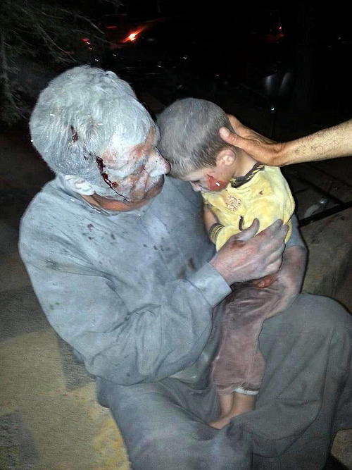 This citizen journalism image taken on Thursday, April 25, 2013 and provided by Edlib News Network, ENN, which has been authenticated based on its contents and other AP reporting, shows a wounded Syrian man holding his injured son after an air raid on the northwestern town of Saraqeb in the province of Idlib, Syria. The White House disclosure Thursday that the Syrian government has twice used chemical weapons still leaves the Obama administration stuck with a limited choice of military options to help the rebels oust President Bashar Assad. (AP Photo/Edlib News Network ENN)