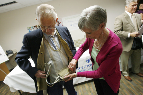 Francisco Kjolseth  |  The Salt Lake Tribune Norm Corbridge of Provo along with his wife Jo, shows off his Left Ventricular Assist Device known as an LVAD, which has kept him alive for nearly seven years. Patients, families and their medical team reunited to celebrate the 20th anniversary of the artificial heart program at Intermountain Medical Center on Tuesday, April 30, 2013.