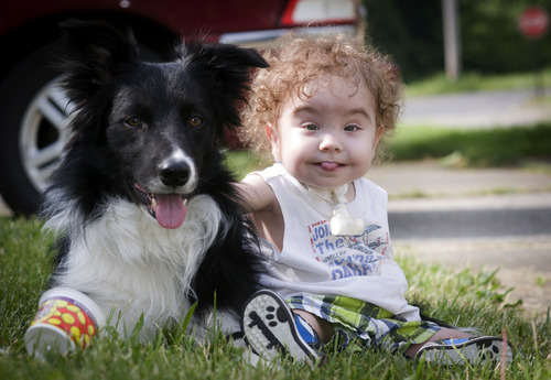 Kaiba Gionfriddo plays with the family's dog, Bandit, outside his Youngstown, Ohio home Tuesday, May 21, 2013. Born with a birth defect that caused the boy to stop breathing every day, he can now breathe normally, with a first-of-a-kind biodegradable airway made by Michigan doctors using plastic particles and a 3-D laser printer. (AP Photo/Mark Stahl)
