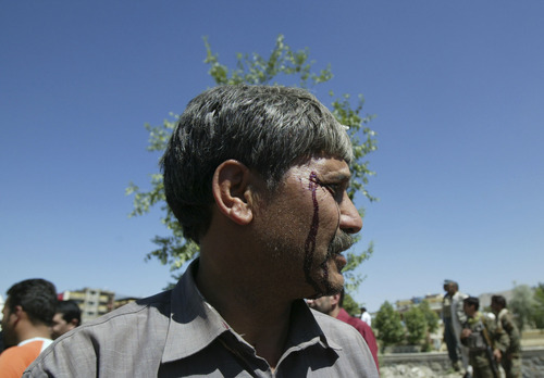 A wounded Afghan man looks on at the site of a blast near the Afghan Independent Human Rights Commission in Kabul, Afghanistan, Tuesday, June, 18, 2013. The large bomb exploded in the Afghan capital on Tuesday as the international military coalition hands over responsibility for fighting the Taliban insurgency to the nascent national army and police they have been training. (AP Photo/Ahmad Nazar)