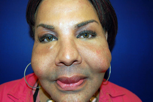 This is a Sept. 12, 2006 photograph provided by Dr. John J. Martin Jr., who specializes in eyelid and facial plastic surgery in Coral Gables, Fla., showing the damage illicit cosmetic procedures can cause recipients such as Rajindra Narinesinch, a patient whose face shows nodules from previous illicit procedures. (AP Photo/Dr. John J. Martin Jr., HO)