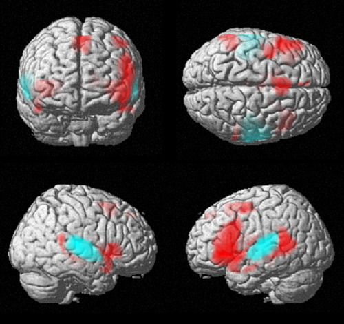 This brain image shows areas active during speech and language shaded in red. While language involves predominantly the left hemisphere of the brain in about 90 percent of people, it is not an exclusively left-brain function. Image courtesy of the University of Utah.