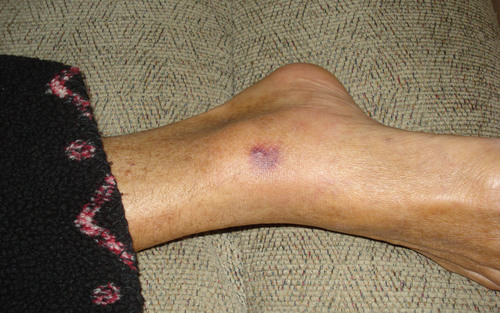 """This photo provided by Patty Konietzky shows her husband's foot of what they thought was a bug bite on Sept. 22, 2013, in Ormond Beach, Fla. Patty and her husband, Henry """"Butch"""" Konietzky, went crabbing in the Halifax River near Ormond Beach in September. Butch developed a sore which was later confirmed to be vibrio vulnificus. The bacteria spread quickly in his body and he died 60 hours later. (AP Photo/Patty Konietsky)"""