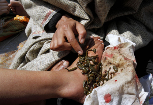 A traditional health worker uses leeches to suck blood from the foot of a patient as part of a treatment near Srinagar, India, Monday, March 21, 2011. Traditional health workers in Indian-controlled Kashmir use leeches to treat skin diseases and ailments such as arthritis, gout, chronic headaches and sinusitis. The leech therapy follows the traditional unani system of medicine that originated in ancient Greece and is recognized by the Indian health authorities. (AP Photo/Mukhtar Khan)