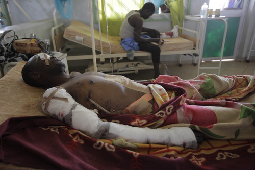 An unidentified victim of Tuesdays car bomb explosions receives treatment in Jos University Teaching Hospital in  Jos, Nigeria, Wednesday, May 21, 2014. Two car bombs exploded at a bustling bus terminal and market in Nigeria's central city of Jos on Tuesday, killing over 100 people, wounding dozens and leaving bloodied bodies amid the flaming debris. There was no immediate claim of responsibility for the twin car bombs. (AP Photo/Sunday Alamba)