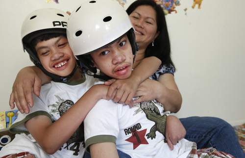 Clarence Aguirre, left, embraces his twin brother Carl while relaxing at the family's home with their mother Arlene in Scarsdale, N.Y.,Thursday, July 31, 2014.  On Monday, Aug. 4, the the formerly-conjoined twins, now 12, are celebrating the ten year anniversary of the risky surgery that separated them. The surgery was performed in four stages at Montefiore Hospital in the Bronx. (AP Photo/Kathy Willens)