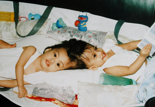 FILE. In this Sept. 9, 2003 file photo provided by Philippine Airlines, 17-month-old Filipino twins Carl, left, and Clarence Aguirre wait at Manila's International airport before their flight to New York. When they were born joined at the head, their mother remembers doctors in the Philippines telling her that she would have to choose which one would live and which would die. But ten years ago doctors at Montefiore Medical Center in the Bronx were able to save both boys in an operation done in 2004.  (AP Photo/Philippine Airlines, File)