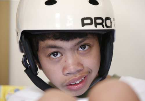Clarence Aguirre, 12, poses for a photograph at his home in Scarsdale, N.Y., Thursday, July 31, 2014. On Monday, Aug. 4, Clarence, his twin brother Carl, and their mother Arlene will celebrate the 10th anniversary of the surgery that separated the formerly-conjoined twins. (AP Photo/Kathy Willens)