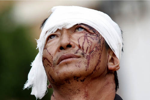 An injured man with dried blood stains on his face stands on the street of the town of Longtoushan which is the epicenter of an earthquake that struck Ludian County in southwest China's Yunnan Province, Monday, Aug. 4, 2014. Rescuers dug through shattered homes Monday looking for survivors of the strong earthquake that toppled thousands of homes on Sunday, killing hundreds and injuring more than a thousand people. (AP Photo) CHINA OUT