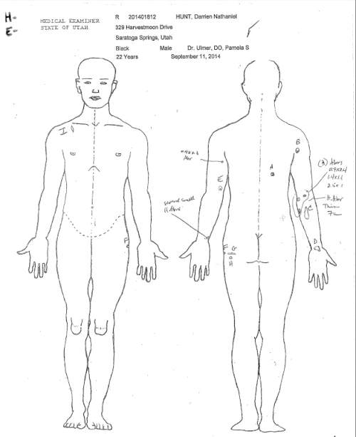 A page from Darrien Hunt's autopsy report showing the bullet wounds he sustained when officers shot and killed him in Saratoga Springs after officers said he lunged at them with a sword.
