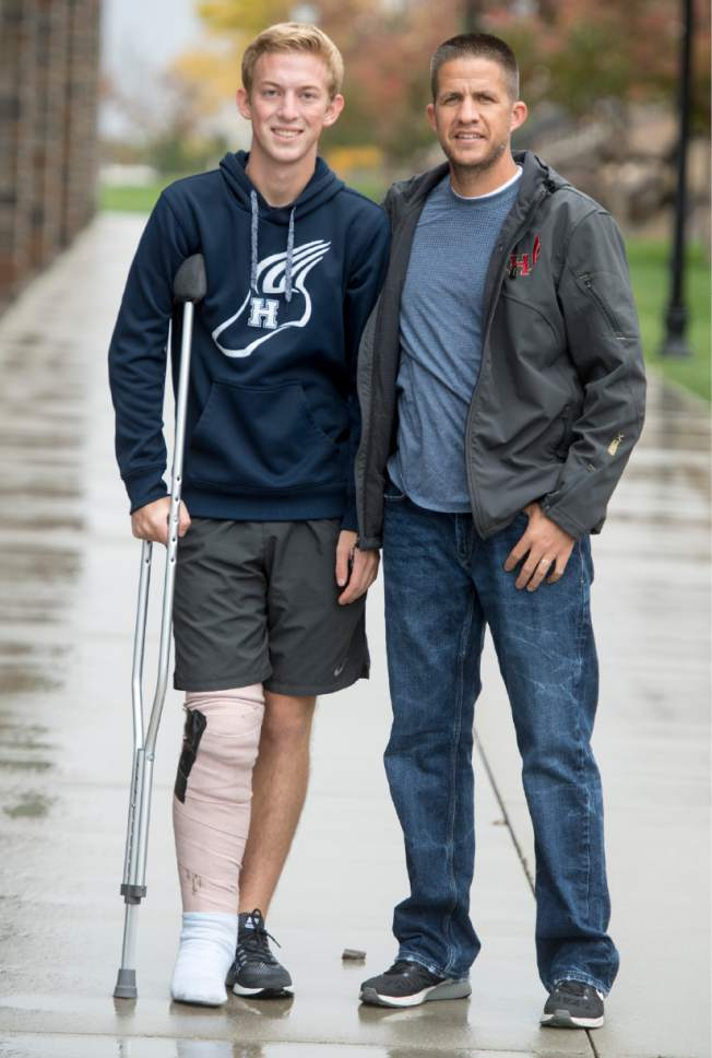 Rick Egan  |  The Salt Lake Tribune  Herman High School cross country runner, Bryan Fugal with Herriman's cross country coach, James Barnes.  Barnes saved several of his players from an oncoming truck, Fugal was actually struck and broke his leg, which ended his senior season. Monday, October 3, 2016.
