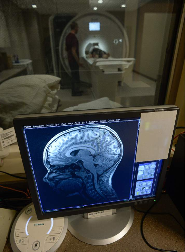 Francisco Kjolseth | The Salt Lake Tribune Bryce Hortin, 11, of Syracuse is positioned in the machine that will periodically capture images of his brain over a 10-year study. At the U of U, psychology professor Deborah Yurgelun-Todd aims to enroll 1,000 Utahns into a study that will ultimately include 12,000 across the country to monitor kids in their preteen and teen years.