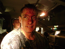 Photograph taken by South Salt Lake police on Jan. 11, 2009, shows a bloody mixed-martial arts fight promoter Mike Stidham minutes after a brawl at Southern X-posure strip club. Stidham and two co-defendants are charged with felony assault and scheduled for trial Tuesday. Courtesy South Salt Lake police via Tyler Ayres.