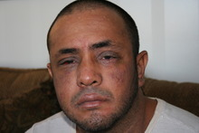 Photograph taken by South Salt Lake police,shows the bruising and swelling on Jacob Alba's face days after a brawl at Southern X-posure strip club, where Alba worked as a bouncer.  Mixed-martial arts fight promoter Mike Stidham is one of three men charged with felony assault over the melee. If convicted, Stidham risks prison and the loss of his promoters license. Courtesy South Salt Lake police via Tyler Ayres.