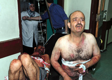 In this photo released by the Syrian official news agency SANA, two injured Syrian men who were wounded after two bombs exploded at Qazaz neighborhood, react at a hospital in Damascus, Syria, on Thursday May 10, 2012. Two strong explosions ripped through the Syrian capital Thursday, killing or wounding dozens of people and leaving scenes of carnage in the streets in an assault against a center of government power. (AP Photo/SANA)