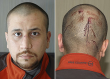 This combo made from Feb. 27, 2012 photos provided by the State Attorney's Office shows George Zimmerman, the neighborhood watch volunteer who shot Trayvon Martin. The photo and reports were among more than 200 pages of photos and eyewitness accounts released by prosecutors Thursday, May 17, 2012. (AP Photo/State Attorney's Office)