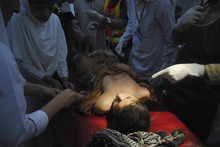 A Pakistani boy, who was injured in a suicide attack, receives treatment at a hospital in Peshawar, Pakistan, Tuesday, June 12, 2012. Two people were killed when a suicide bomber blew up himself targeting a vehicle belongs to anti-Taliban Lashkar militia commander Faheem Khan, who was not in the vehicle, a police official said. (AP Photo/Mohammad Sajjad)