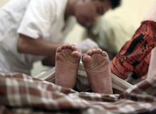 A boy's toes curl in pain as a doctor performs circumcision on him during a charge-free mass circumcision sponsored by a gubernatorial candidate in Jakarta, Indonesia, Tuesday, June 26, 2012. In accordance with Islamic tradition, Indonesian Muslim boys are circumcised before they reach puberty. Indonesia is the world's most populous Muslim country. (AP Photo/Dita Alangkara)