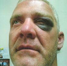 Photo of R. Todd May, who alleges he was beaten by Utah Highway Patrol troopers.